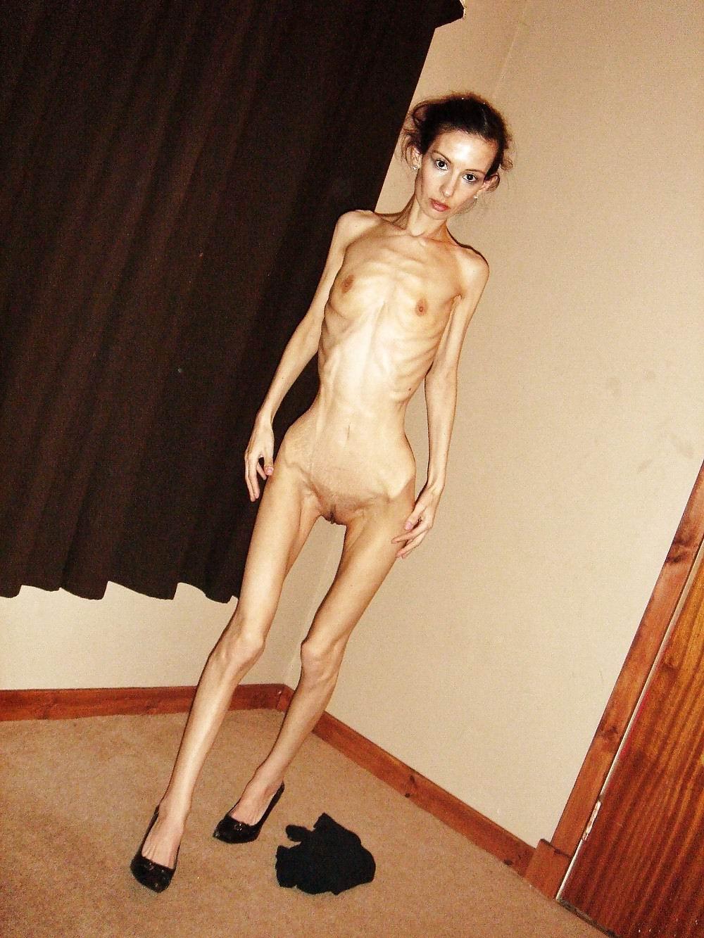 Anorexic Milf Xxgasm